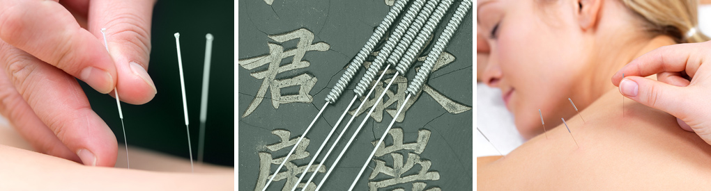 Ancient Roots Acupuncture and Chinese Massage